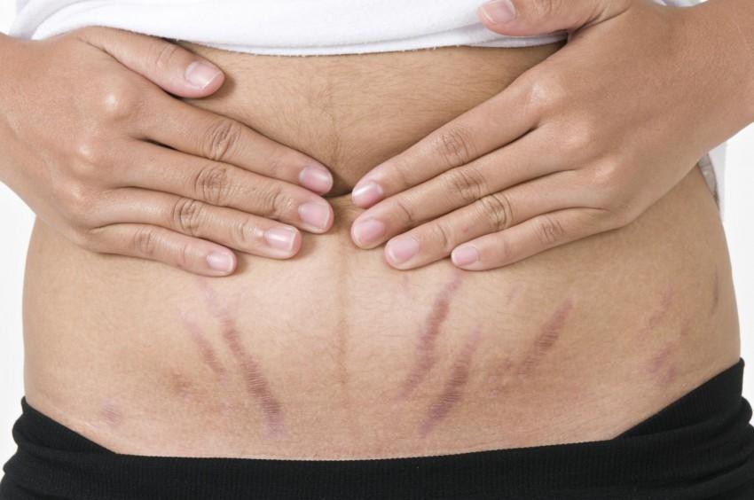Как убрать растяжки на животе после похудения